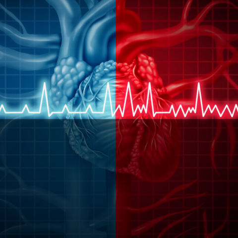 AI from Google recognizes risk of heart attack sq